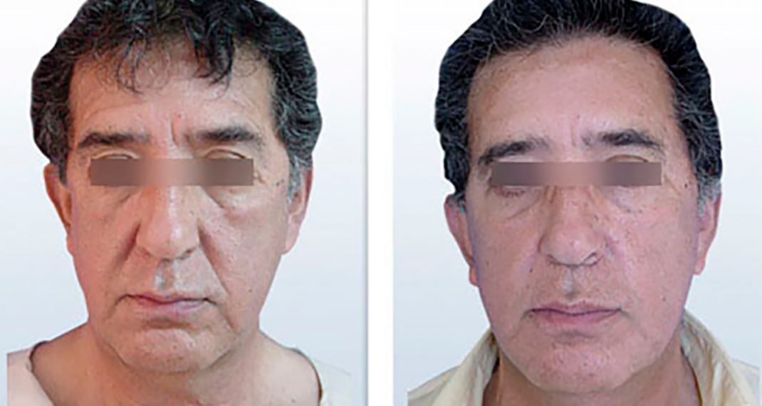 Lifting-Facial-AD-GilAntorveza-1