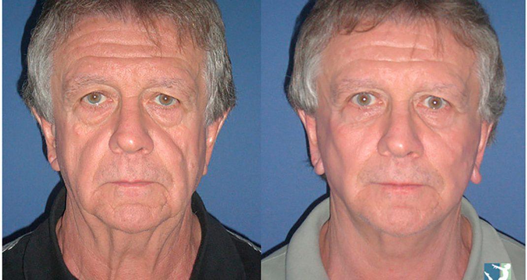 Lifting-Facial-before-after-Lmv-1