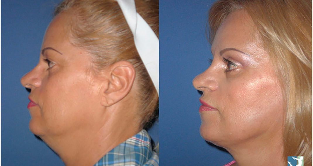 Lifting-Facial-before-after-Lmv-2