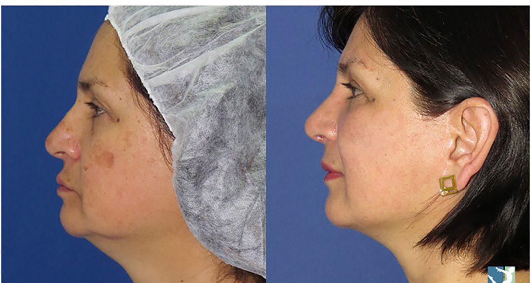 Lifting-Facial-before-after-Lmv-3