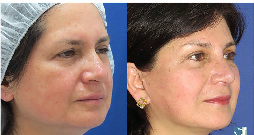 Lifting-Facial-before-after-Lmv-4