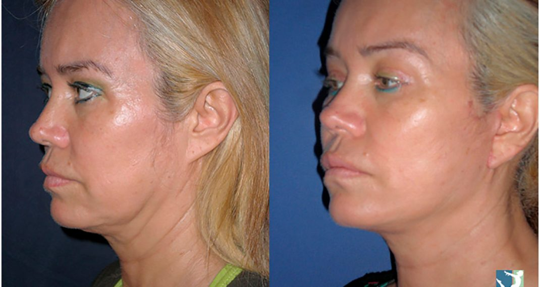 Lifting-Facial-before-after-Lmv-6
