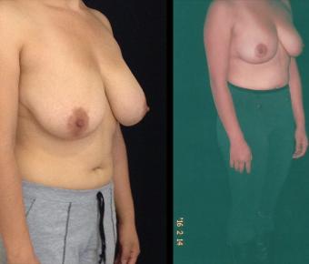 Reduccion-senos-Antes-y-despues-ARM-4