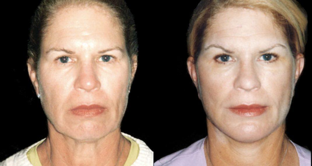 Rejuvenecimiento-facial-ARM-10