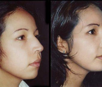rinoplastia-antes-despues-ARM-14