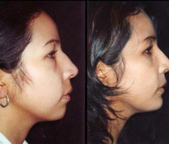 rinoplastia-antes-despues-ARM-15