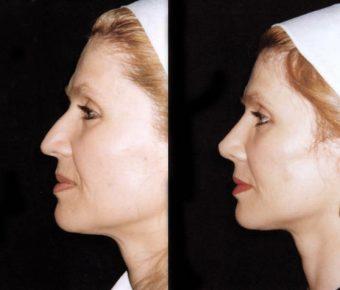 rinoplastia-antes-despues-ARM-16