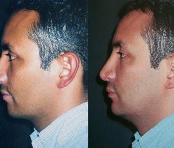 rinoplastia-antes-despues-ARM-25