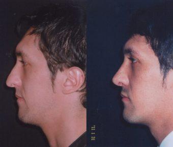 rinoplastia-antes-despues-ARM-26