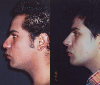 rinoplastia-antes-despues-ARM-29