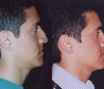 rinoplastia-antes-despues-ARM-31
