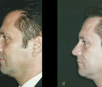 rinoplastia-antes-despues-ARM-35