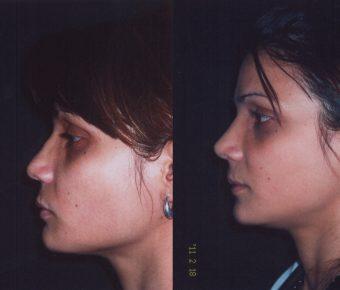 rinoplastia-antes-despues-ARM-6