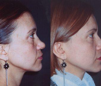 rinoplastia-antes-despues-ARM-8