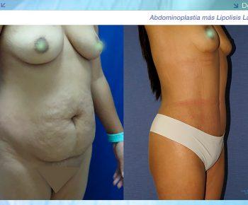 Lipoabdominoplastia-antes-despues–LV-10