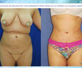 Lipoabdominoplastia-antes-despues–LV-4