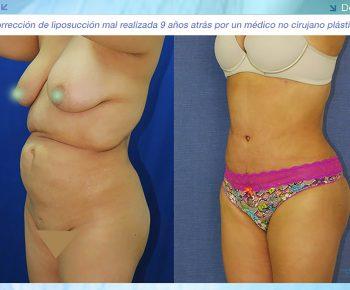 Lipoabdominoplastia-antes-despues–LV-5