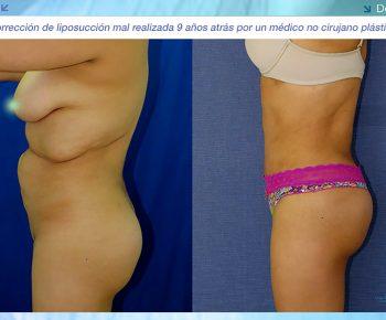 Lipoabdominoplastia-antes-despues–LV-6