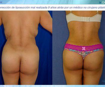 Lipoabdominoplastia-antes-despues–LV-8