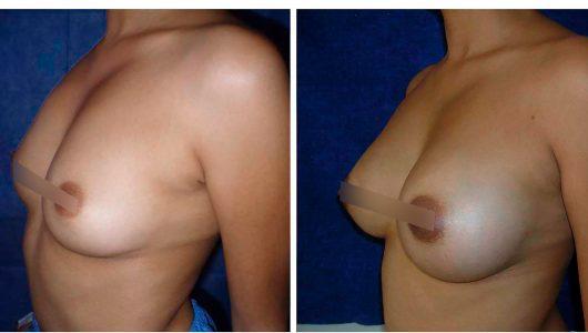 aumento-senos-antes-despues-02