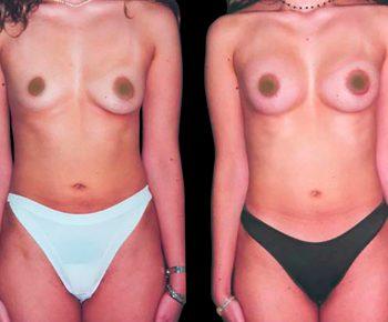 aumento-senos-antes-despues-ARM-2