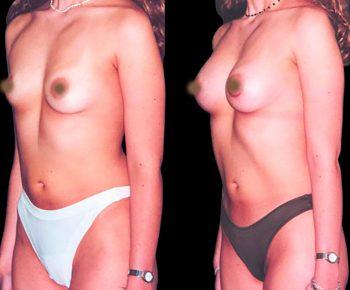 aumento-senos-antes-despues-ARM-3