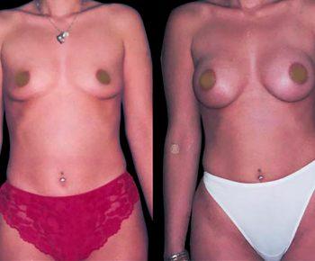 aumento-senos-antes-despues-ARM-4