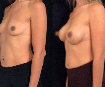 aumento-senos-antes-despues-ARM-5