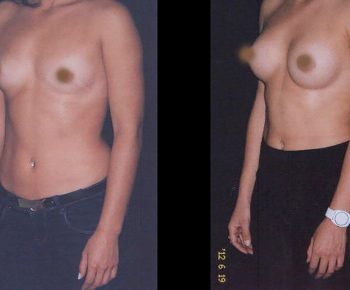 aumento-senos-antes-despues-ARM-6