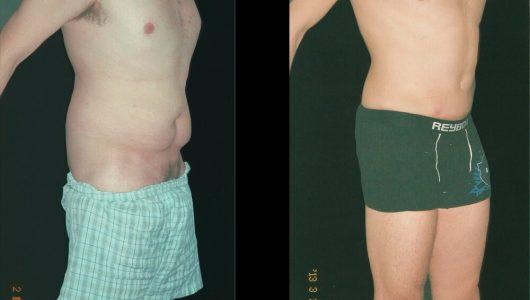 liposuccion-antes-despues-ARM-12-T