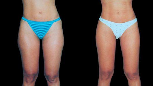 liposuccion-antes-despues-ARM-2-T