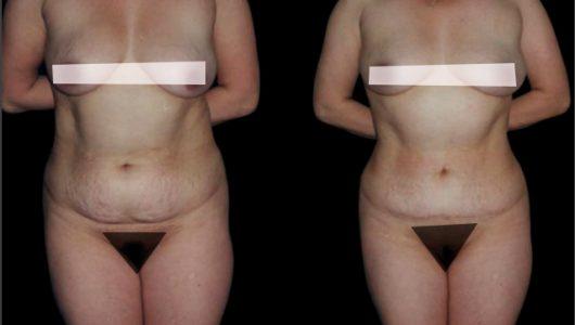 liposuccion-antes-despues-ARM-4-T