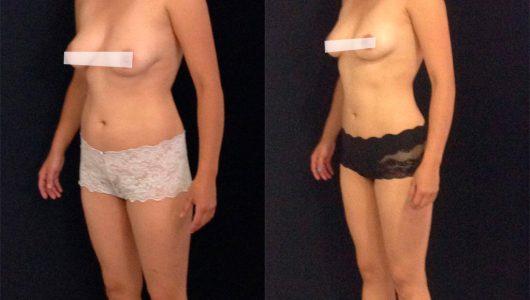 liposuccion-antes-despues-ARM-7-T
