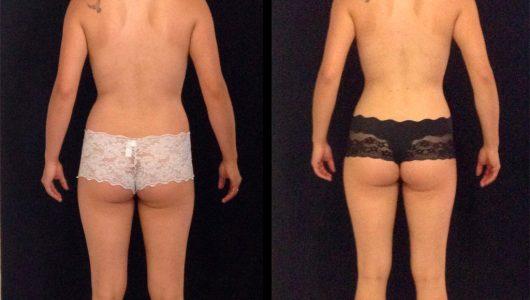 liposuccion-antes-despues-ARM-8-T
