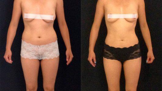 liposuccion-antes-despues-ARM-9-T